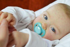 Izpuščaji pri otroku so lahko zaradi klopne bolezni.